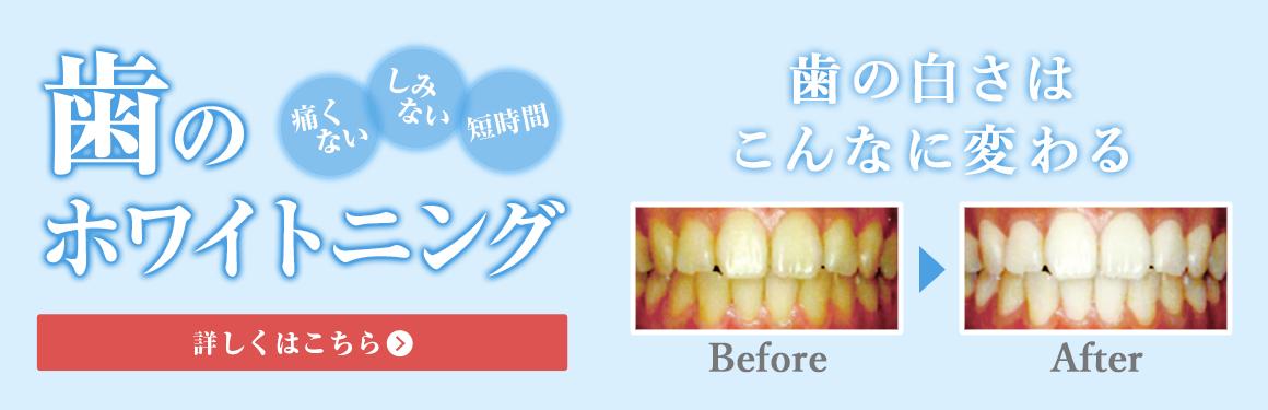 痛くない しみない 短時間 歯のホワイトニング 詳しくはこちら 歯の白さはこんなに変わる
